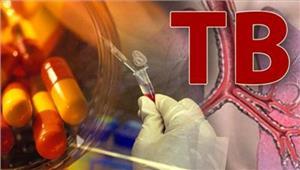 अच्छेदिन  दुनिया में टीबी के सबसे ज्यादा रोगी भारत में