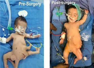 नोएडा  जेपी अस्पतालआठ अंग वाले बच्चे का सफल आपरेशन मिली नई जिंदगी